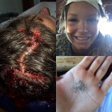 Julia Mancuso has risked big: 15 stitches in his head for an accident at sea